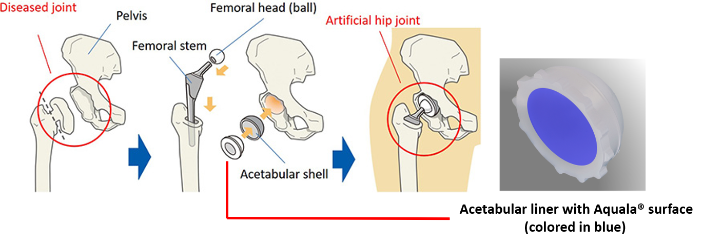 Kyocera_Mechanism of Hip Joint Replacement Technology.png